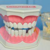歯がかけたとき 歯はどうすればいいの?再生できる?